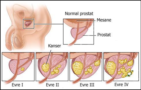 Prostat Kanseri Hakkında Bilinmesi Gerekenler