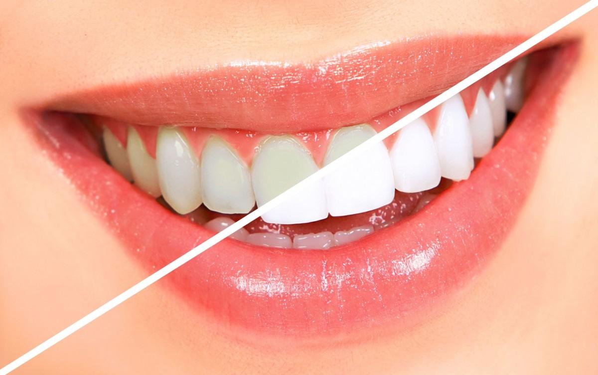 Diş Beyazlatma Sağlıklı Mı?
