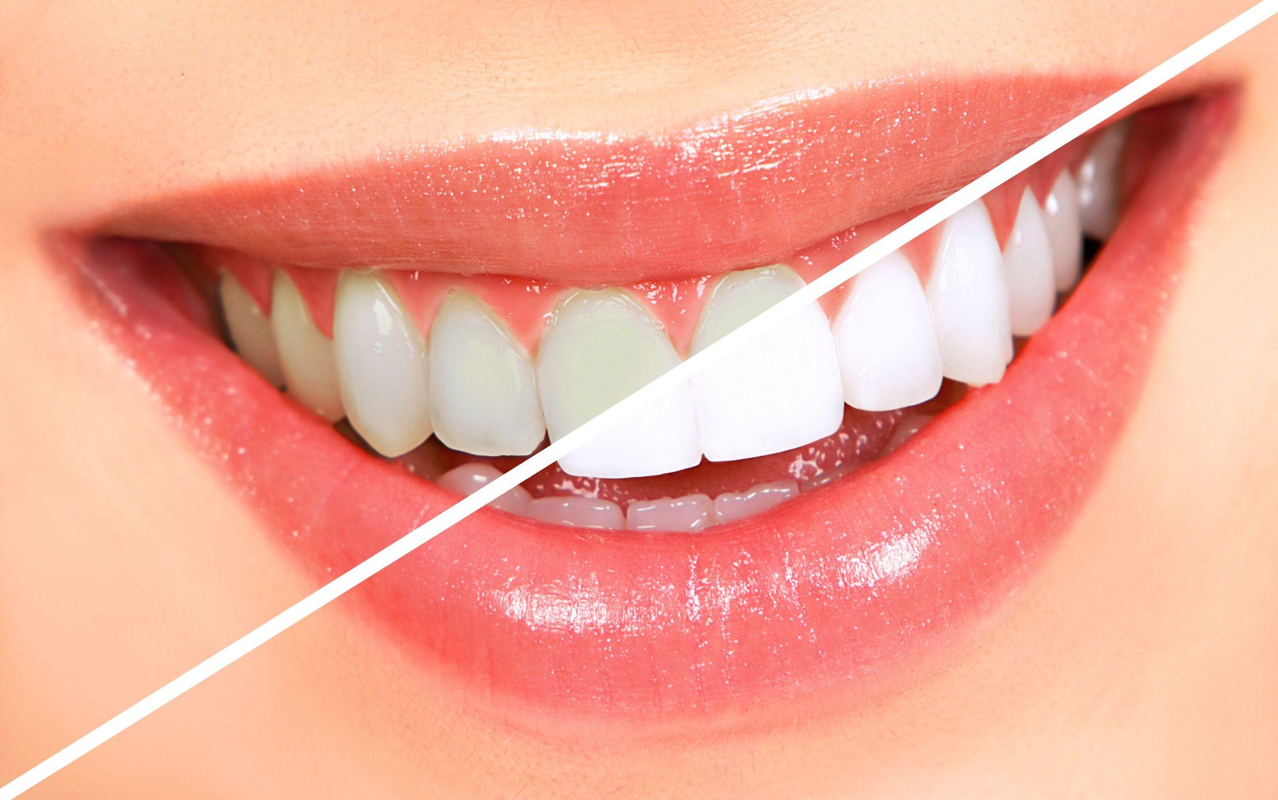 diş beyazlatma, diş beyazlatma işlemleri, diş beyazlatma sağlıklı mı