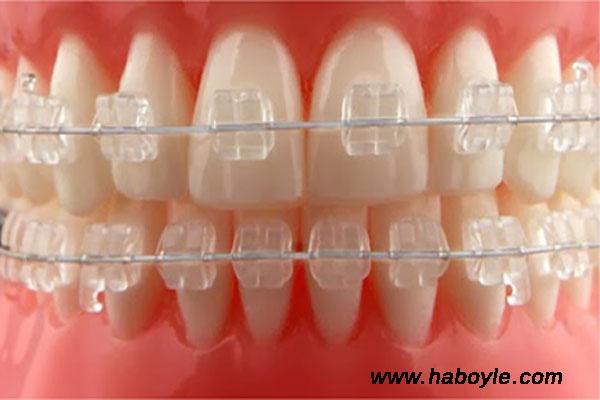 Diş teli fiyatları çeşitlerine göre farklılık gösterir mi?