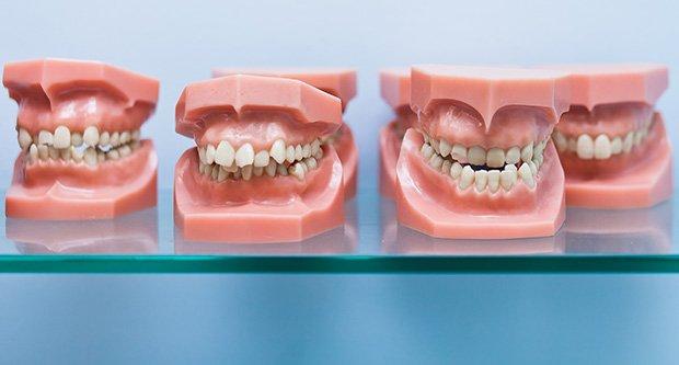 Ortodonti Neler İle İlgilenir?