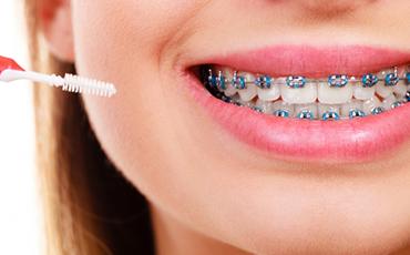 Ortodontinin Diş Sağlığına Etkisi Nedir?