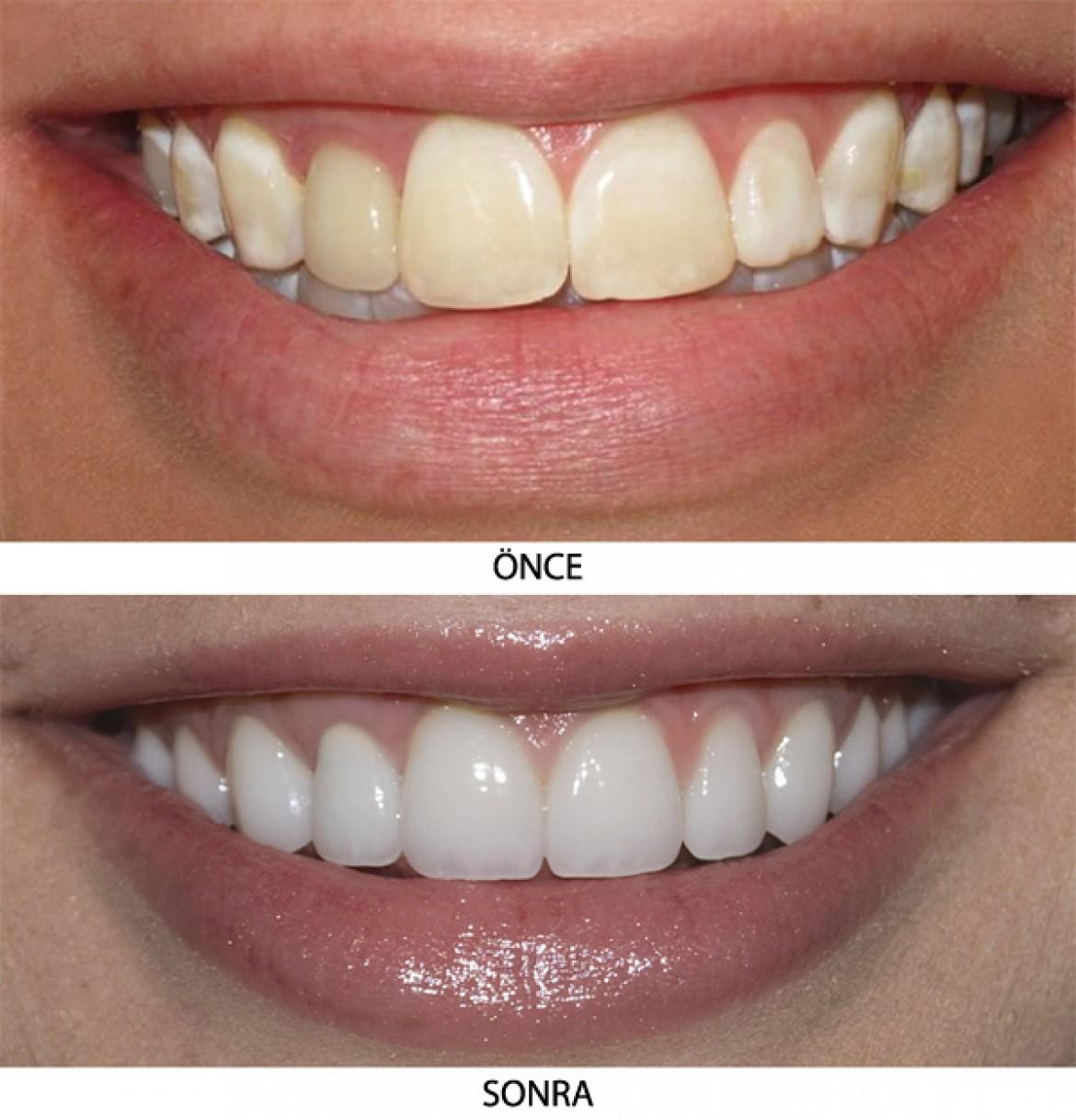 Kaliteli Diş Estetiği