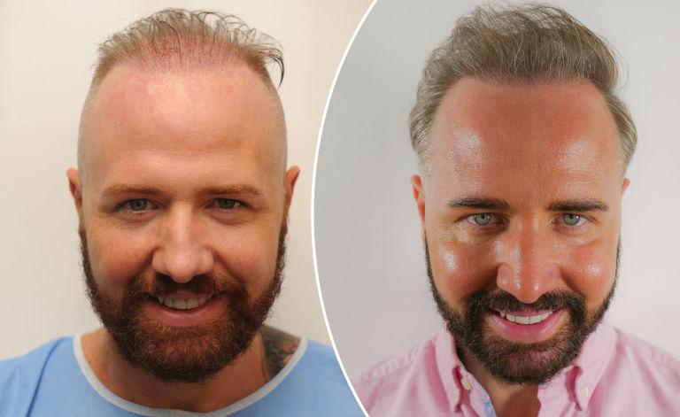 En İyi Saç Ekim Merkezlerinin Deneyimi