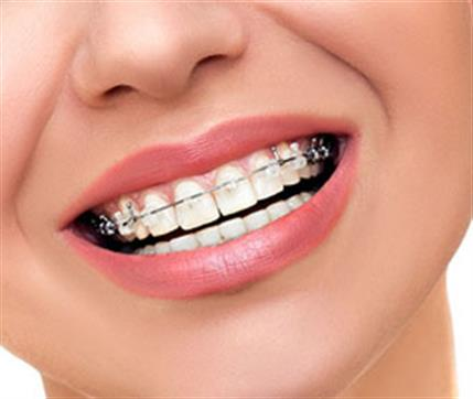 Profesyonel Ortodonti Tedavisi