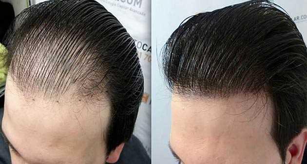 En İyi Saç Ekim Merkezi
