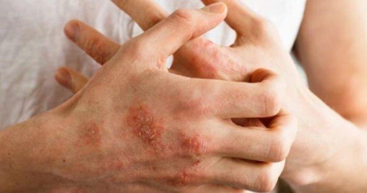Egzama Tedavisinde Kullanılan İlaçlar Nelerdir?