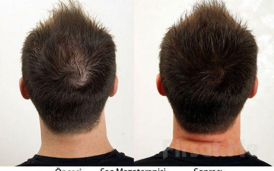 Saç mezoterapisini kimler tercih ediyor?